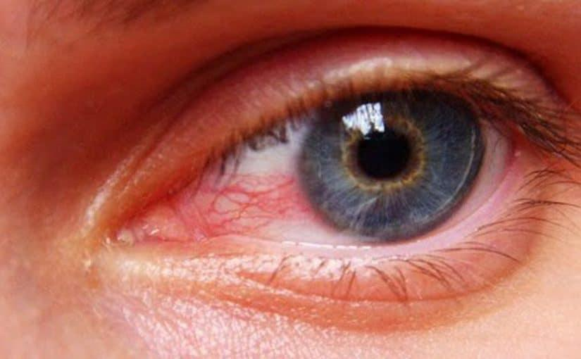 أسباب احمرار العين وعلاجها